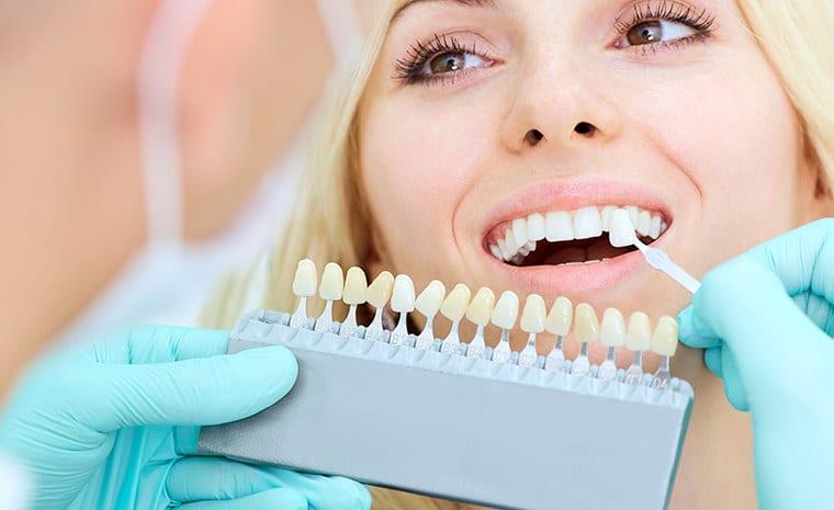 Dental Crowns | Anoka Dental