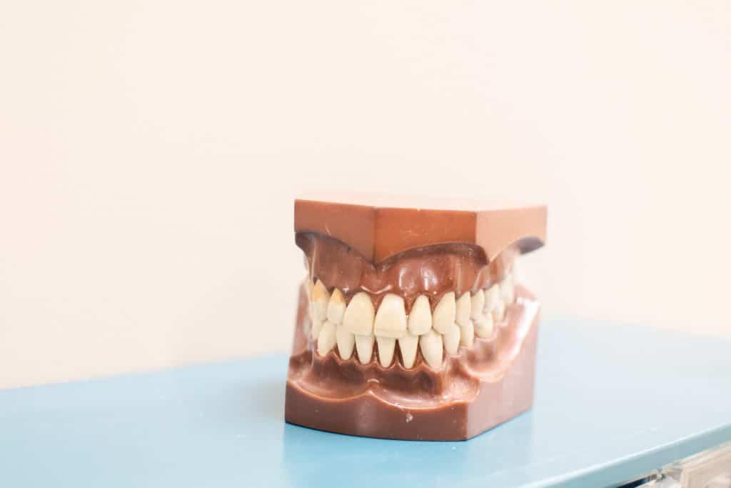 Periodontitis - Anoka Dental
