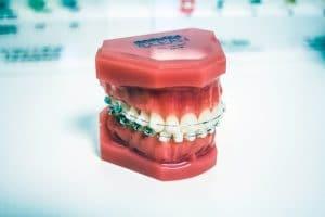 Dental Braces - Anoka Dental