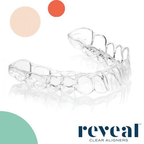 Reveal Teeth Aligners